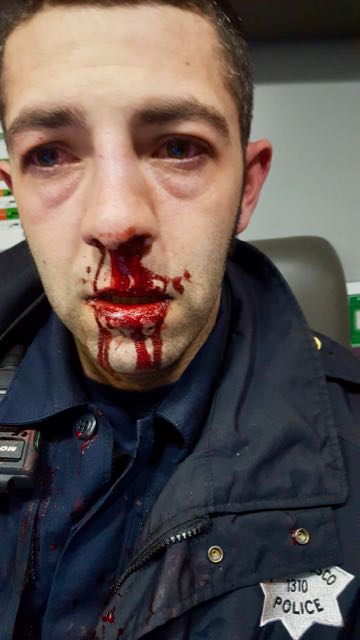 Photo of Officer Patino's injuries. Puffy red eyes with blood running from his nose.